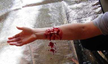 Hémorragie du bras